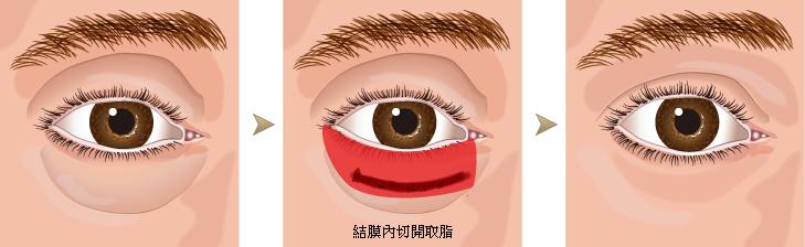 台中雙眼皮