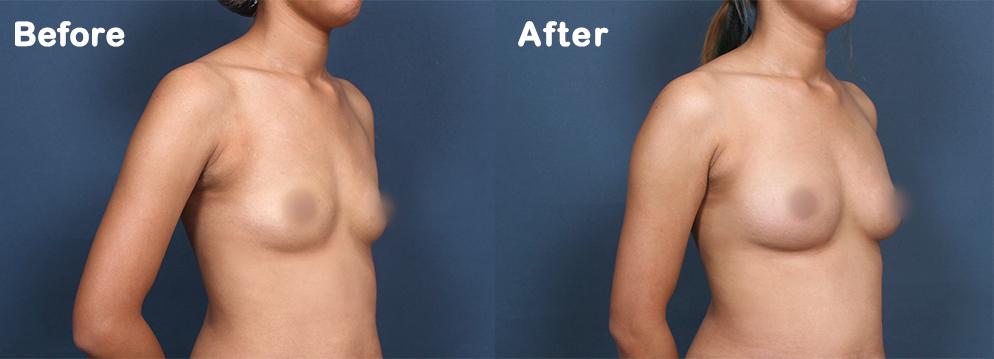 產後胸型萎縮怎麼辦?【自體脂肪豐胸】抽脂+豐胸一次美麗!