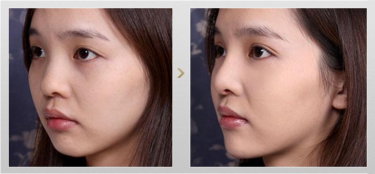 韓式結購式隆鼻+BL深眸術+玻尿酸精雕下巴